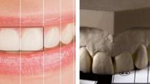 Diş Estetiğinde Gizli Şifre